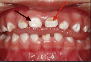 White Spots on Baby Teeth