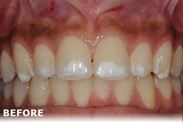 White Spot Removal Growing Smiles in Floral Vale Yardley PA